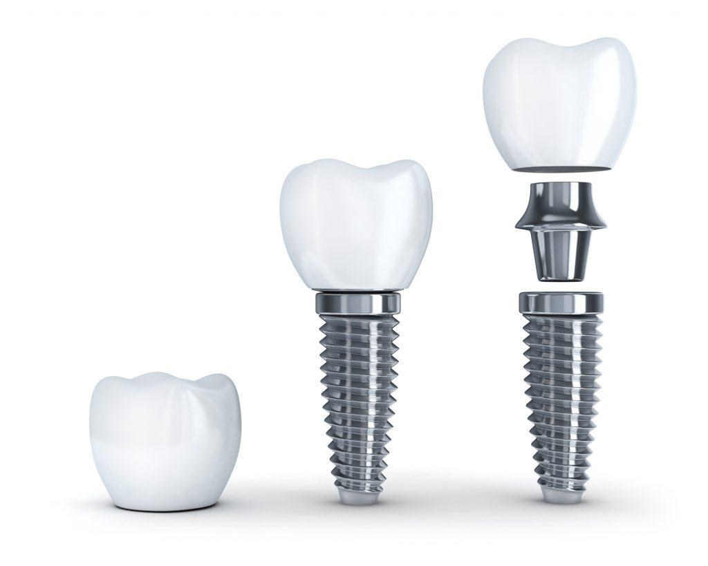 bursa-implant-KORU-DİŞ